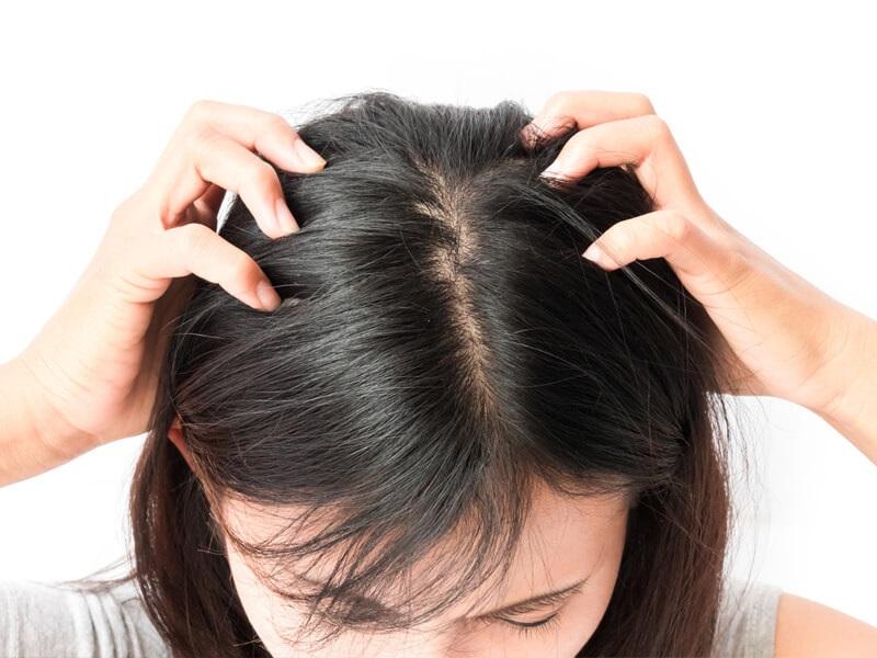 Chăm sóc tóc bằng bia có tác dụng gì? 8 cách gội đầu bằng bia để trị gàu, trị nấm và mọc tóc nhanh-2