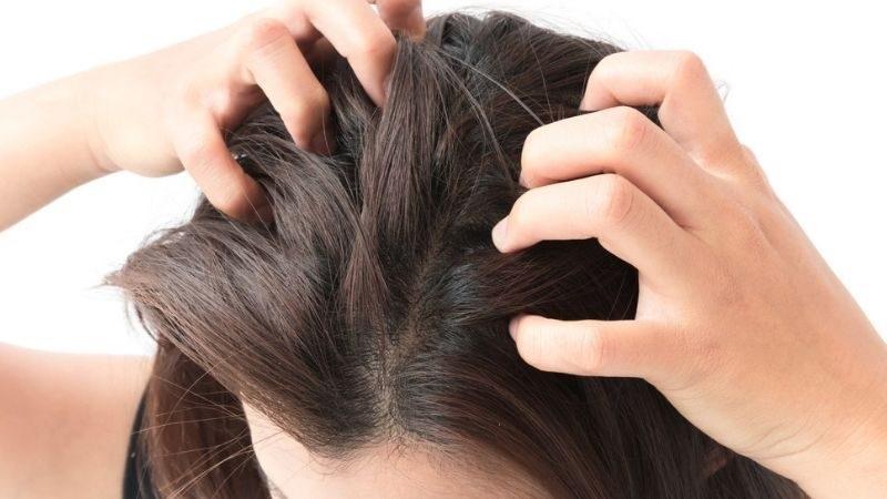 [TƯ VẤN] Bệnh vảy nến da đầu và dầu gội trị vảy nến da đầu ?-1