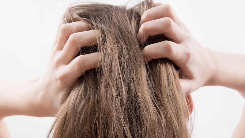 [TƯ VẤN] Bệnh vảy nến da đầu và dầu gội trị vảy nến da đầu ?-3