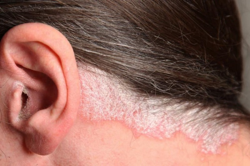 [TƯ VẤN] Bệnh vảy nến da đầu và dầu gội trị vảy nến da đầu ?-4