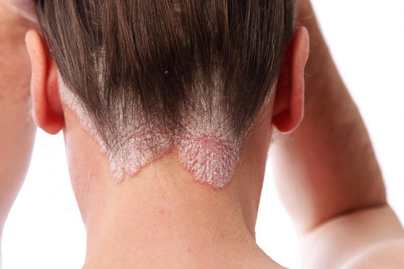 [TƯ VẤN] Bệnh vảy nến da đầu và dầu gội trị vảy nến da đầu ?